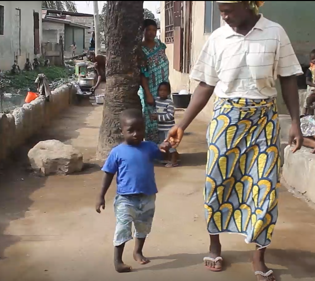 37-year-old Adiza Abukar's inability to pay for her son's surgery has led to his deformity.